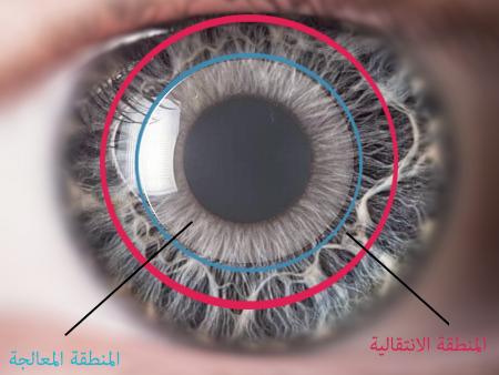910315903 مع تحسن الجفاف يصبح سطح العين أكثر نعومة فتتحسن الرؤية .